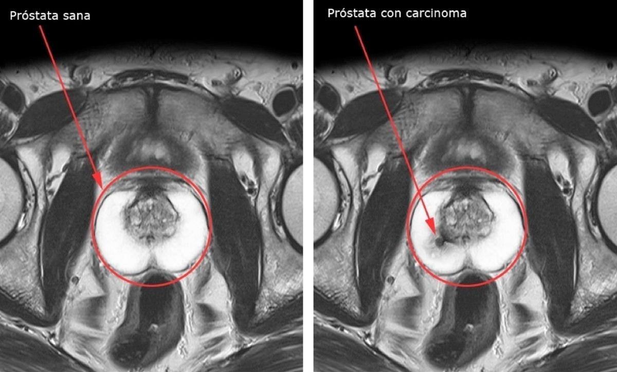 nombre del tratamiento hormonal para el cáncer de próstata